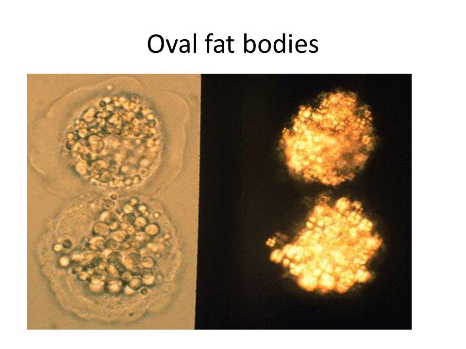 oval fat bodies diagram rapidly progressive (crescentic) glomerulonephritis(rpgn ...