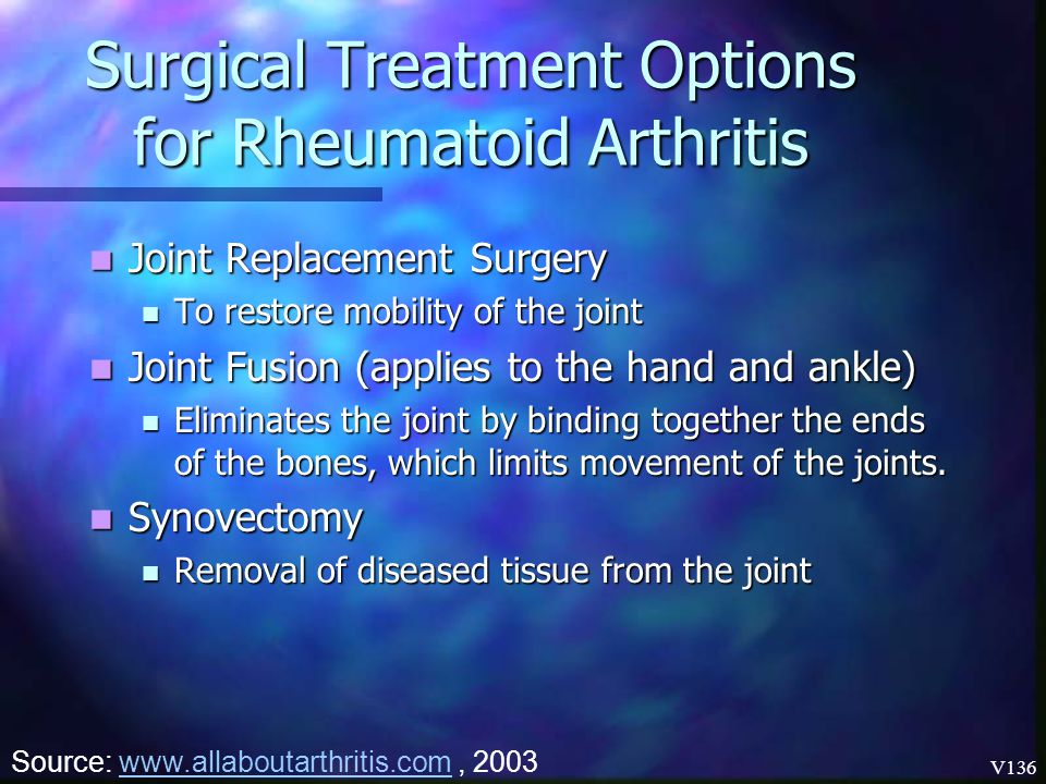 Surgical Treatment Options for Rheumatoid Arthritis