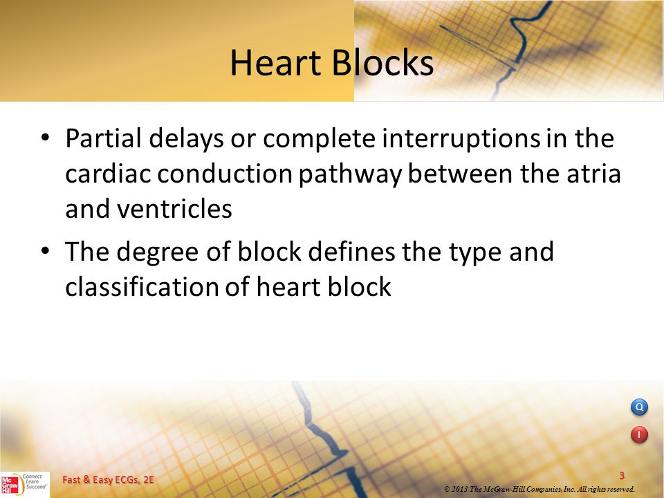 Heart Blocks Partial delays or complete interruptions in the cardiac conduction pathway between the atria and ventricles.