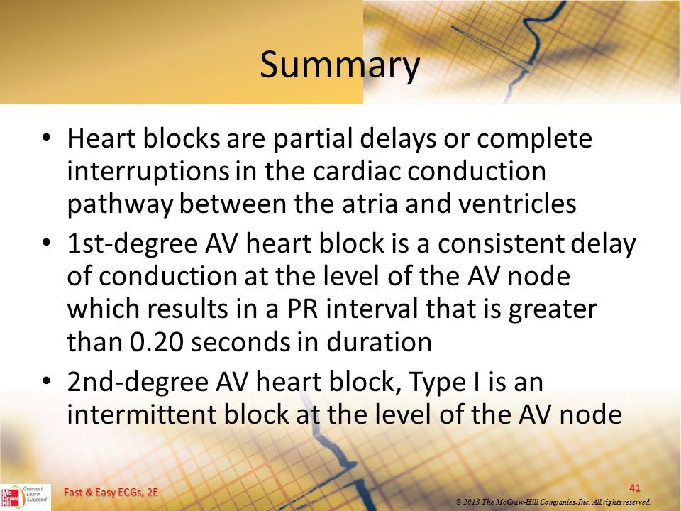 Summary Heart blocks are partial delays or complete interruptions in the cardiac conduction pathway between the atria and ventricles.