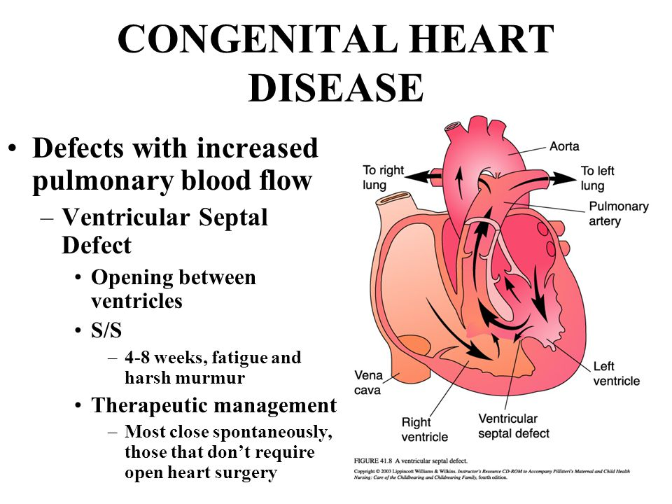 NURSING CARE OF THE CHILD WITH A CARDIOVASCULAR DISEASE ...