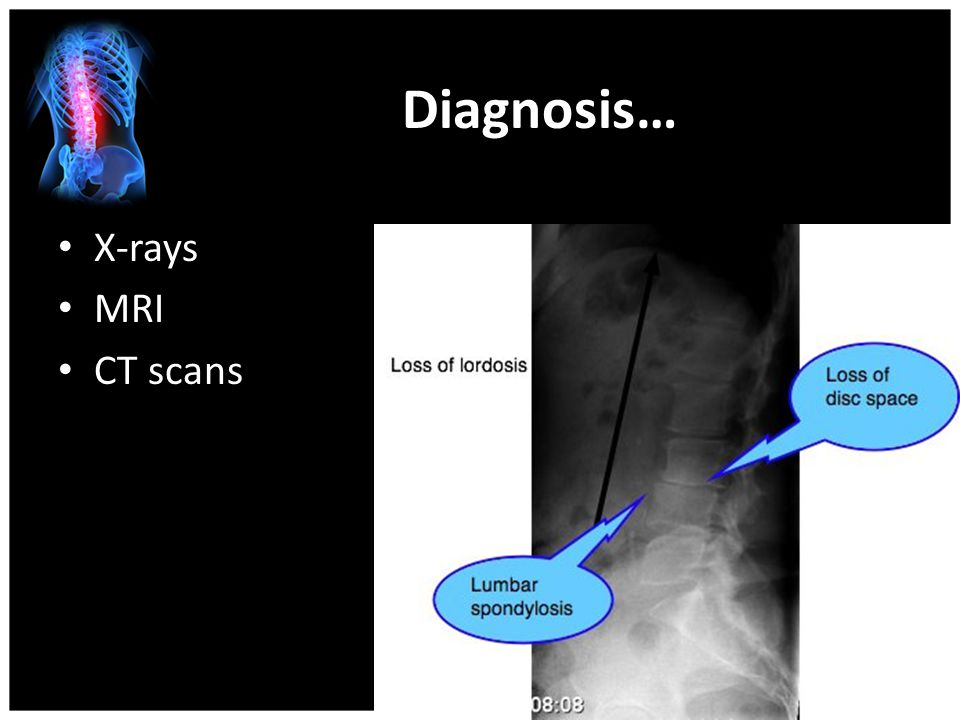Diagnosis… X-rays MRI CT scans