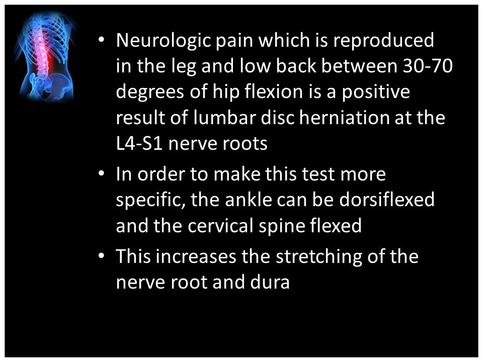 Neurologic pain which is reproduced in the leg and low back between degrees of hip flexion is a positive result of lumbar disc herniation at the L4-S1 nerve roots