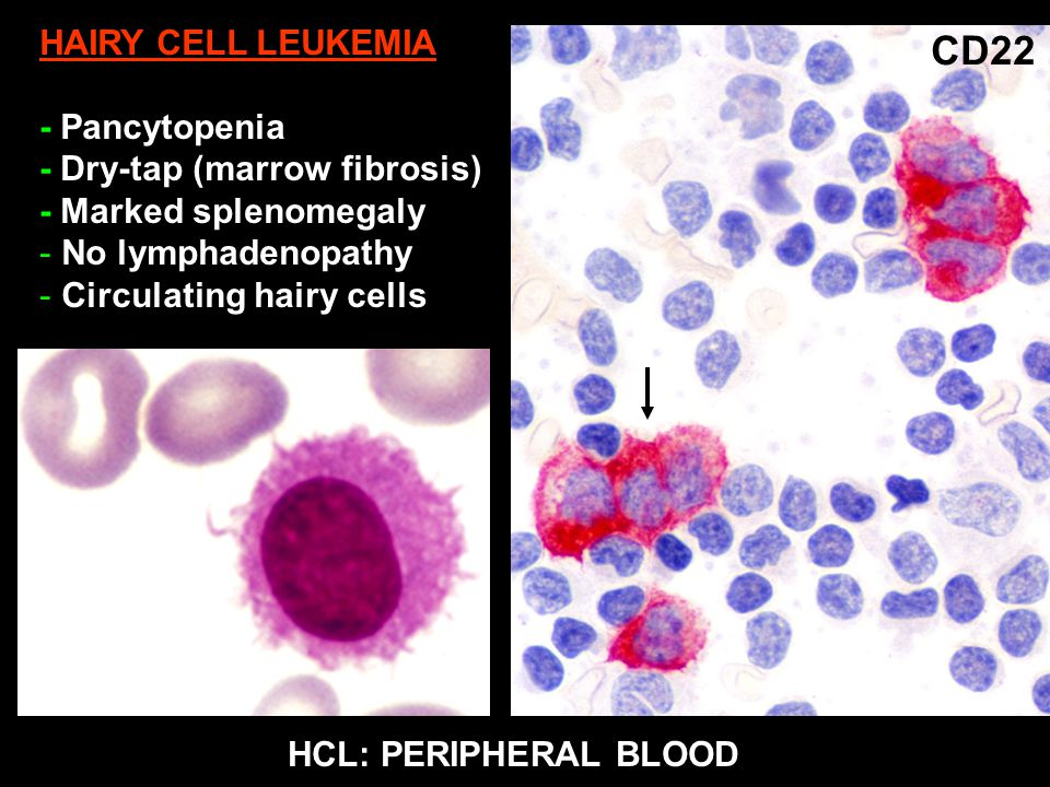 Hairy cell leukemia - Wikipedia