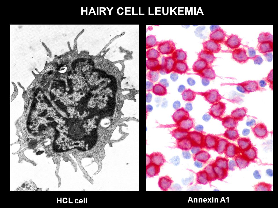 Hairy cell leukemia and monotonous