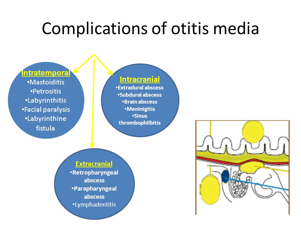 Complications of otitis media