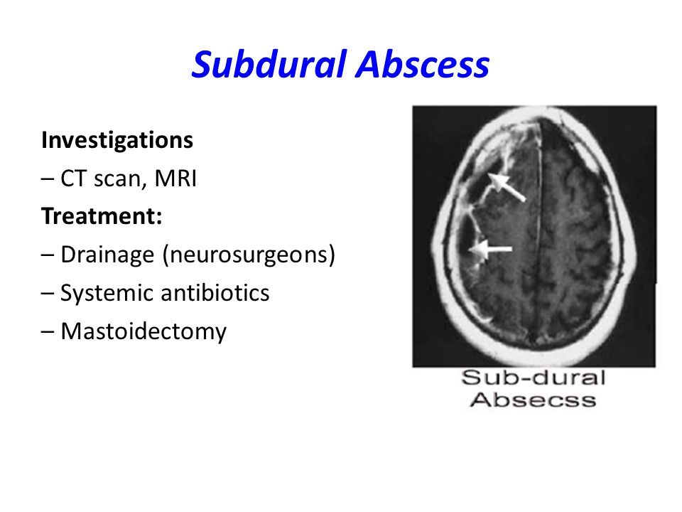 Subdural Abscess Investigations – CT scan, MRI Treatment: – Drainage (neurosurgeons) – Systemic antibiotics – Mastoidectomy