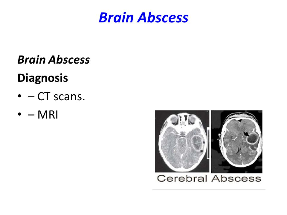 Brain Abscess Brain Abscess Diagnosis – CT scans. – MRI