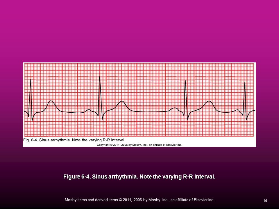 Figure 6-4. Sinus arrhythmia. Note the varying R-R interval.
