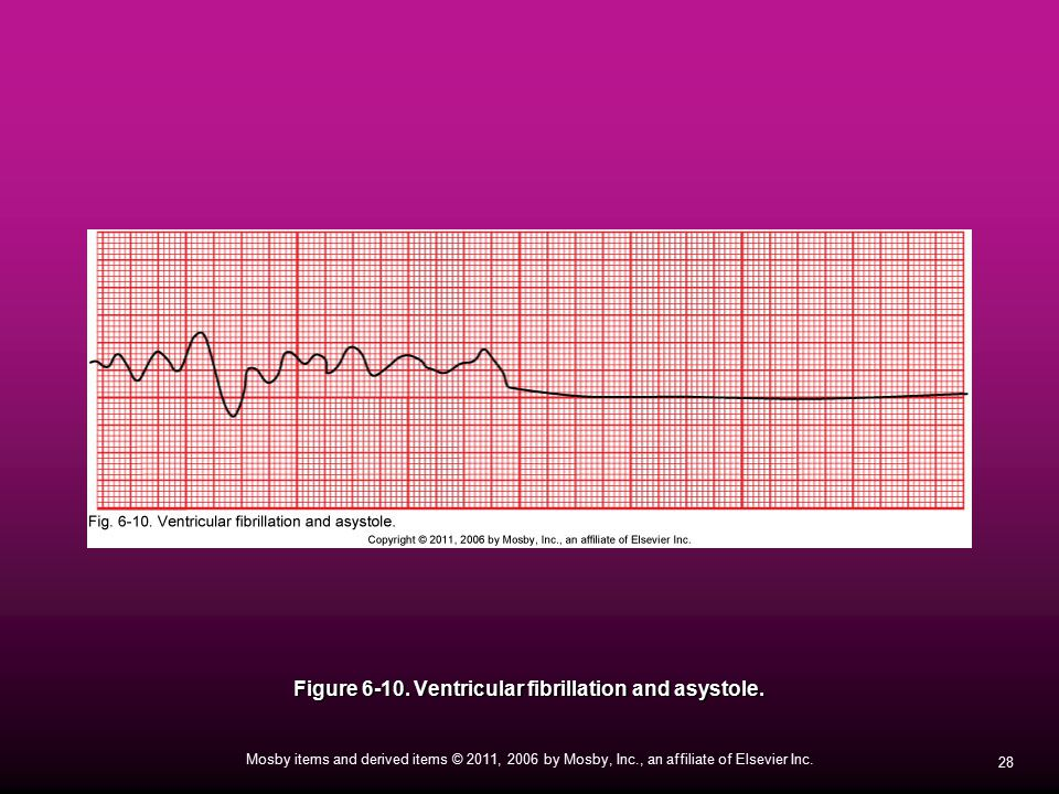 Figure Ventricular fibrillation and asystole.