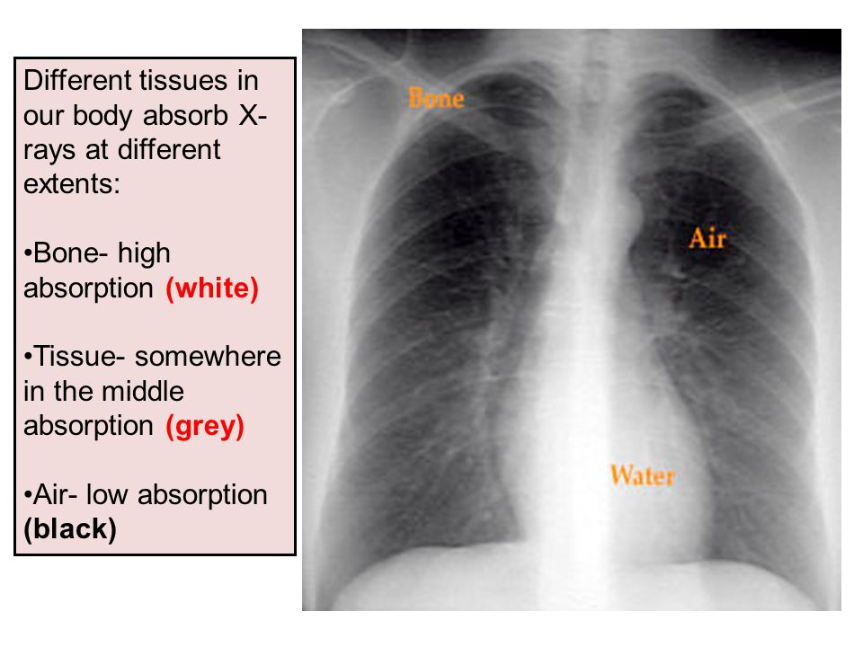 Shoulder x ray anatomy 452218 - follow4more.info