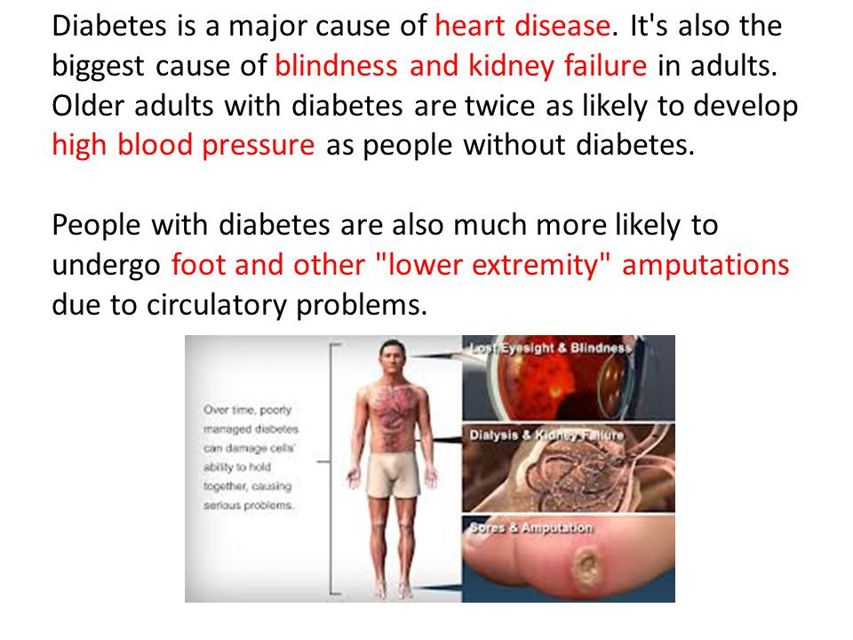 Diabetes is a major cause of heart disease
