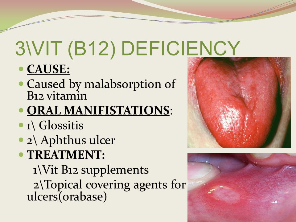 NUTRITIONAL DISORDERS - ppt video online download B12 Deficiency Tongue
