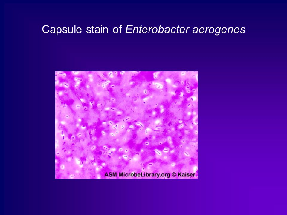 enterobacter aerogenes essay Unknown bacteria lab report | microbiology paper  by cpr nashville unknown : enterobacter aerogenes unknown: staphylococcus aureus negative.