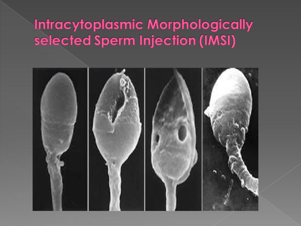 Intracytoplasmic Morphologically selected Sperm Injection (IMSI)