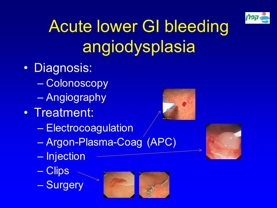 Gastrointestinal Bleeding Ppt Video Online Download