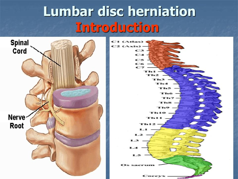 Lumbar disc herniation Introduction