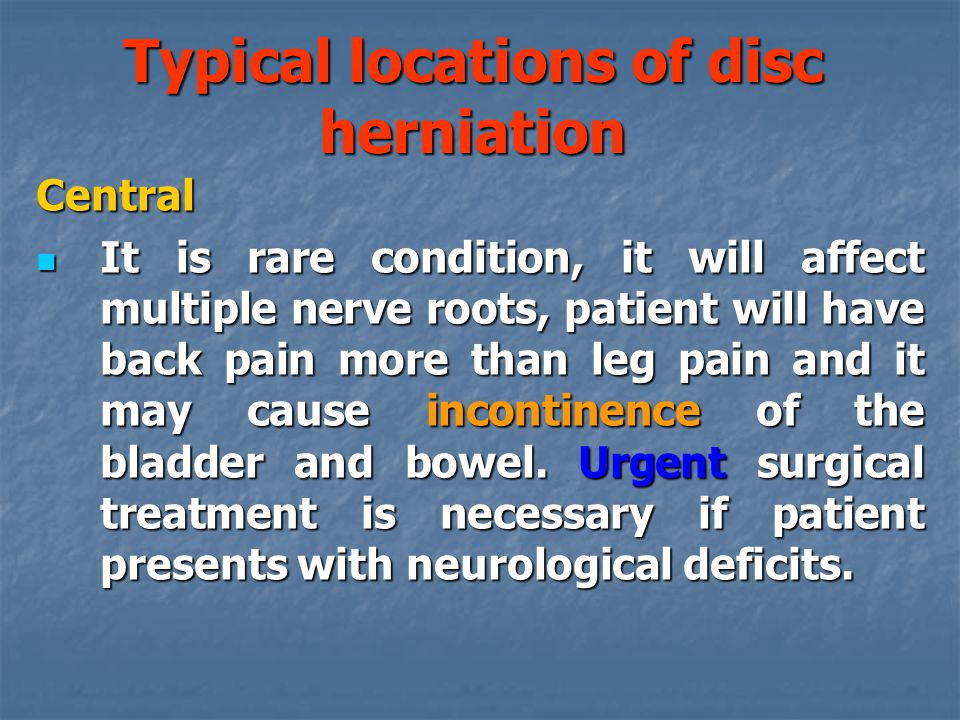 Typical locations of disc herniation