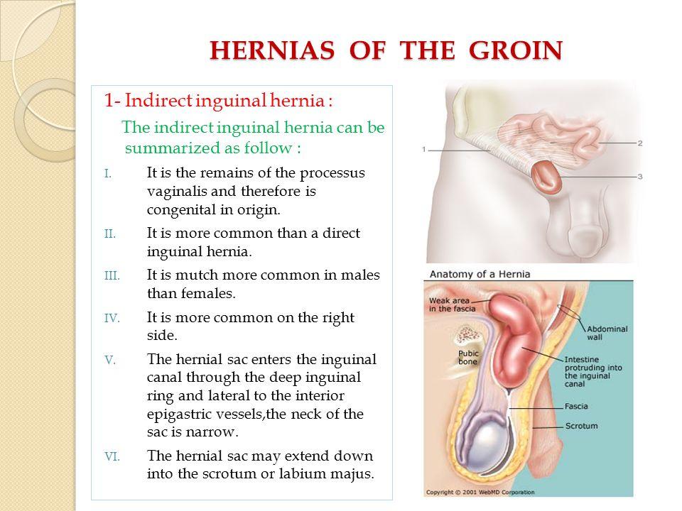 ABDOMINAL HERNIAE A. WEISS M.D - ppt video online download Groin Hernia Female