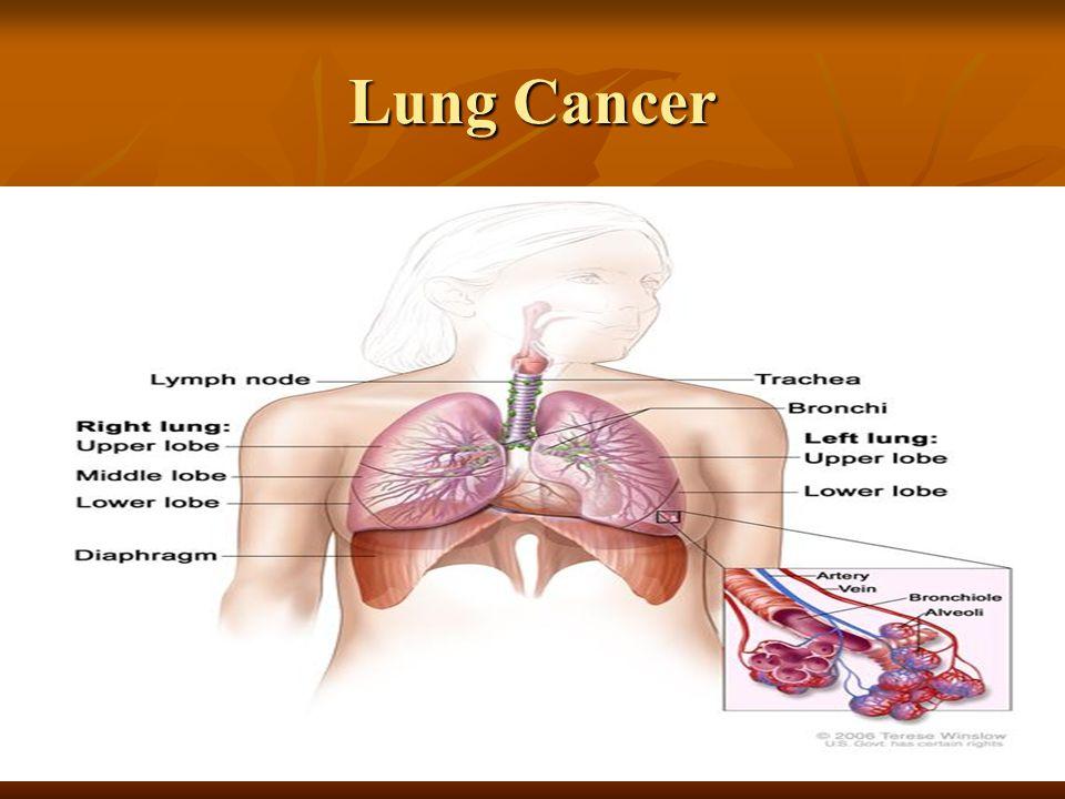 Atemberaubend Anatomy And Physiology Of Lung Cancer Zeitgenössisch ...