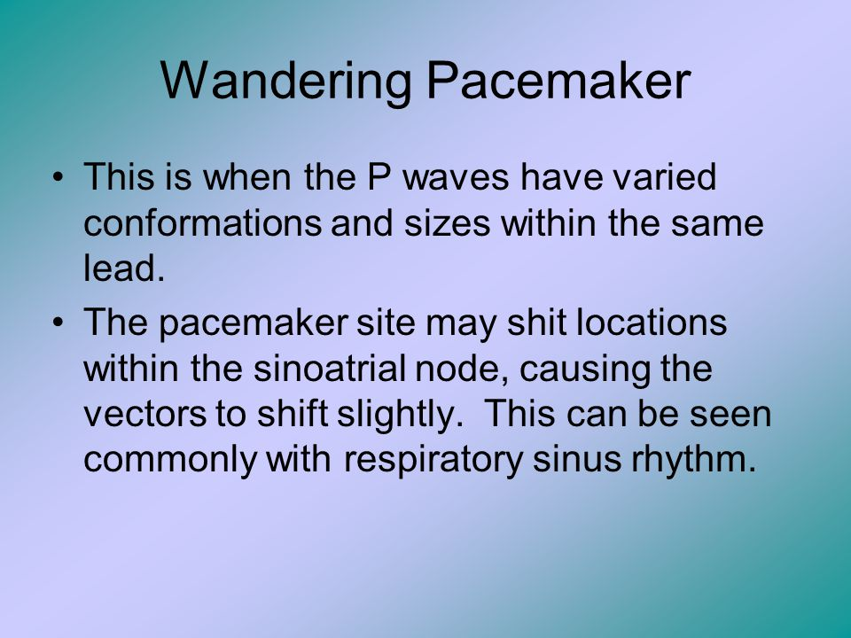Wandering Pacemaker This is when the P waves have varied conformations and sizes within the same lead.