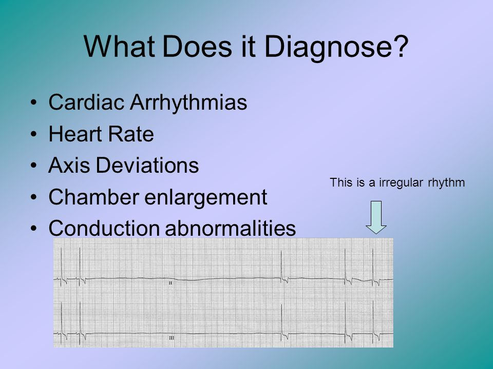 What Does it Diagnose Cardiac Arrhythmias Heart Rate Axis Deviations