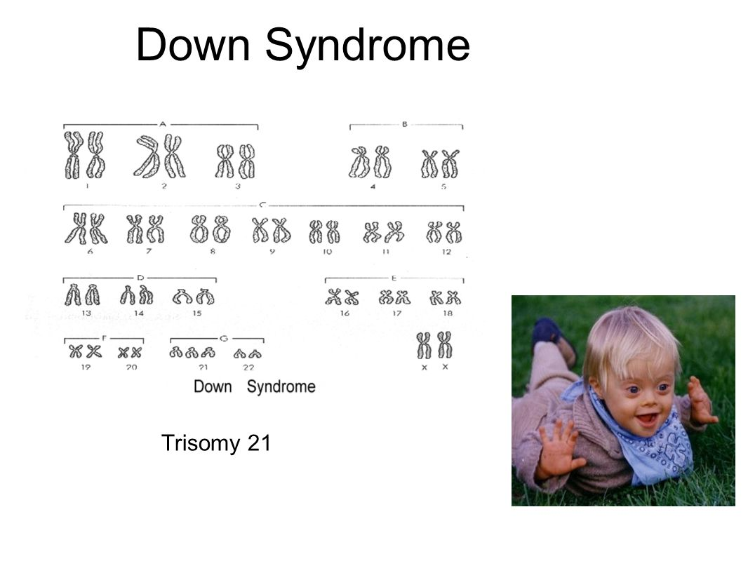 an introduction to the analysis of the issue of down syndrome Genes carry the information that determines your traits (features or characteristics passed on to you from your parents) with down syndrome, the extra chromosome.