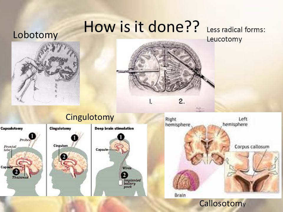 Treatment And Therapies Ppt Video Online Download