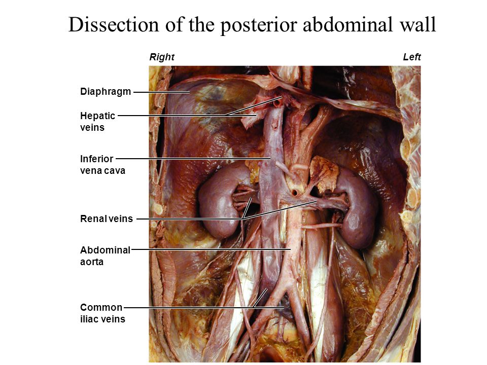 Dissection of the posterior abdominal wall