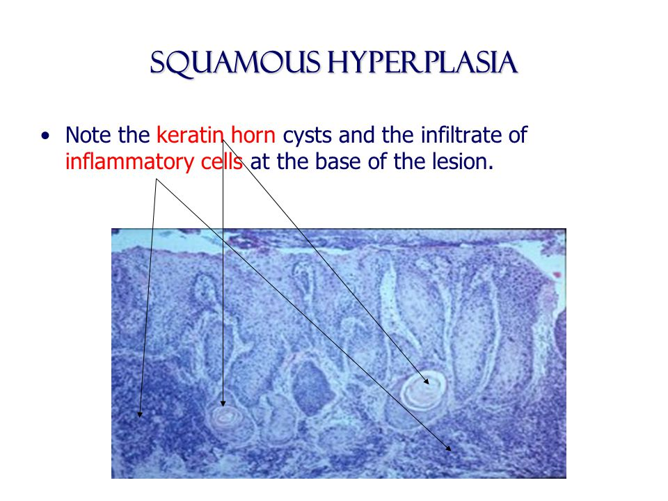 Squamous Hyperplasia Note the keratin horn cysts and the infiltrate of inflammatory cells at the base of the lesion.