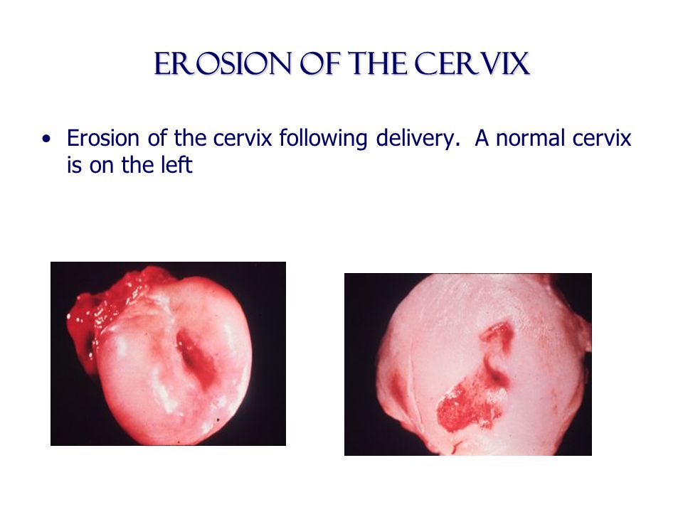 Erosion of the Cervix Erosion of the cervix following delivery. A normal cervix is on the left
