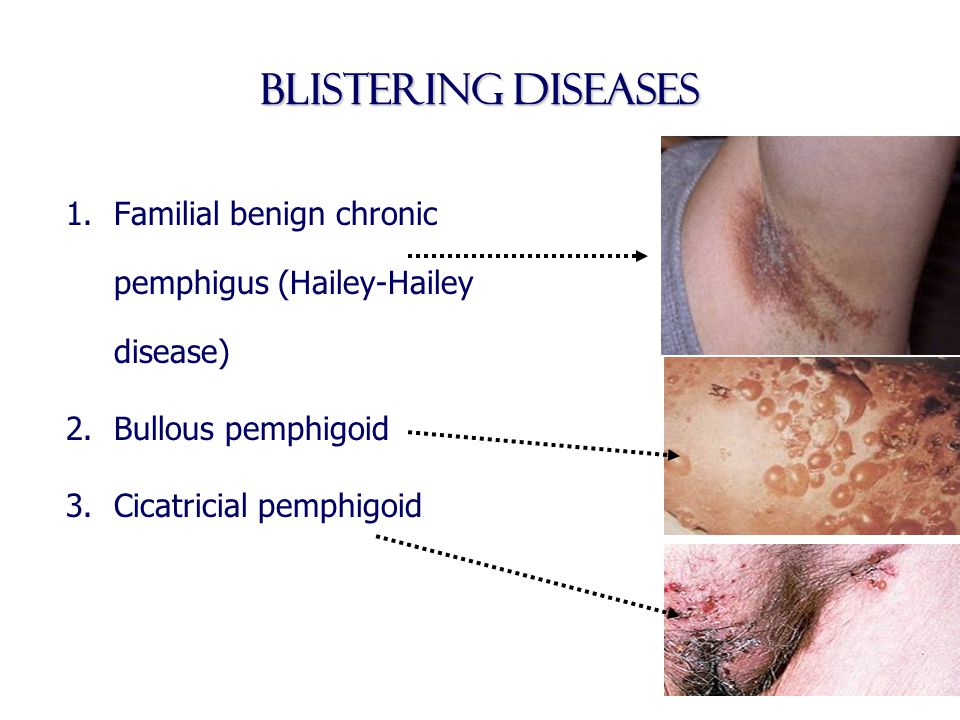Blistering diseases Familial benign chronic pemphigus (Hailey-Hailey disease) Bullous pemphigoid.