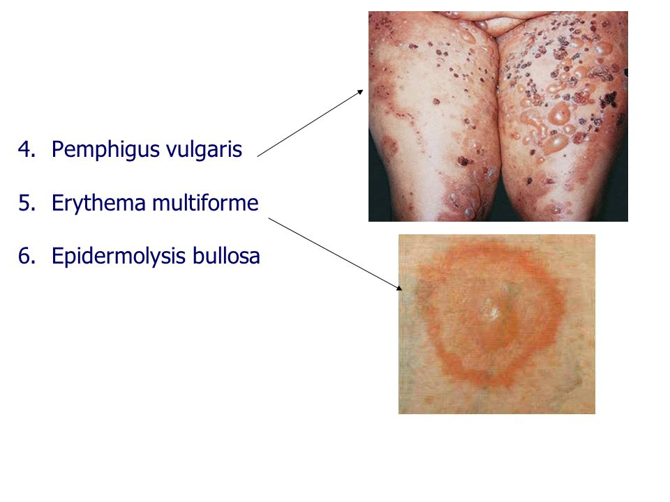 Pemphigus vulgaris Erythema multiforme Epidermolysis bullosa