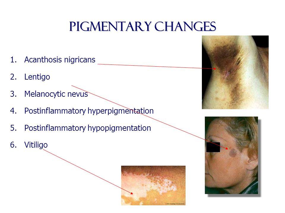 Pigmentary changes Acanthosis nigricans Lentigo Melanocytic nevus