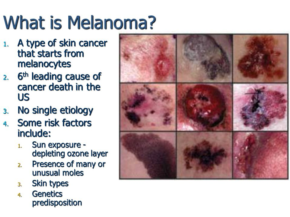 Melanoma and skin cancers vs Image Processing - ppt download