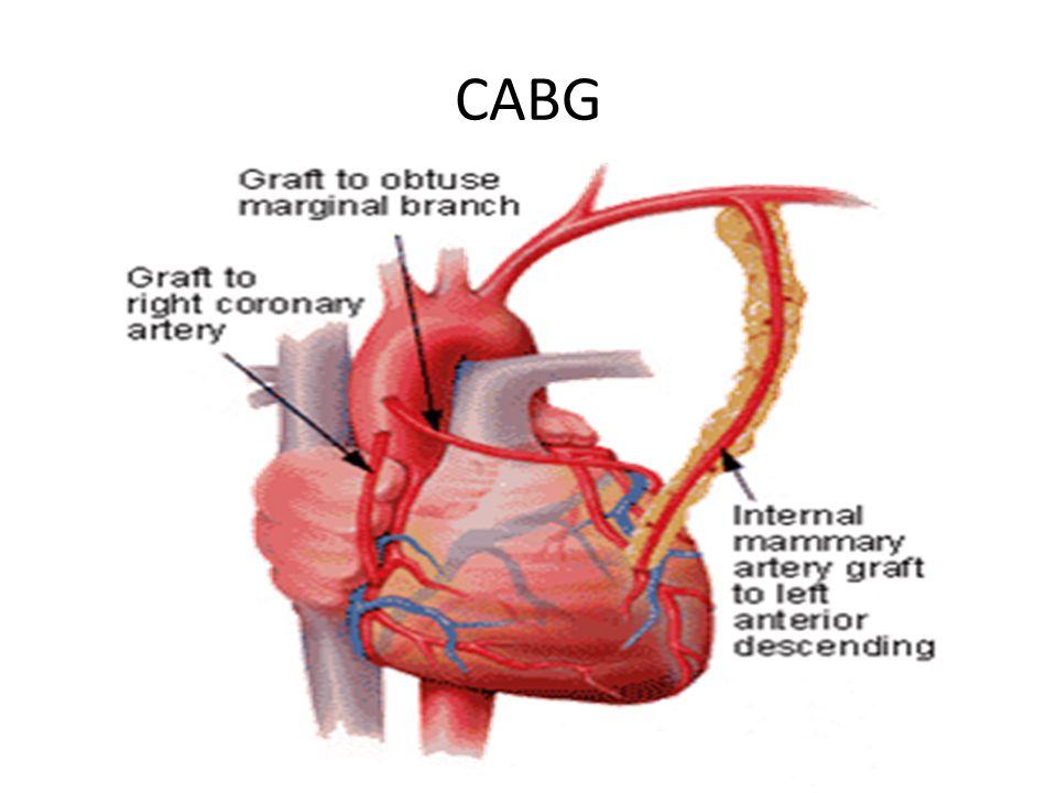 Calcium heart study