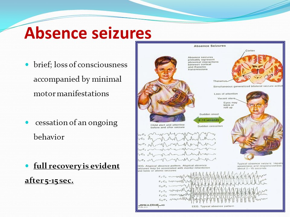 Absence seizures brief; loss of consciousness accompanied by minimal motor manifestations. cessation of an ongoing behavior.