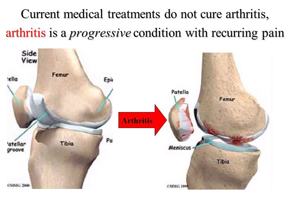 for arthritis