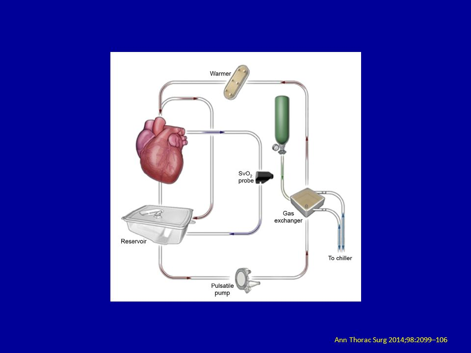 an introduction to the prolonged preservation of the heart prior to transplantation This article reviews current experience with the organ care system for heart preservation key words: organ preservation, warm preservation, heart donor, heart transplantation.