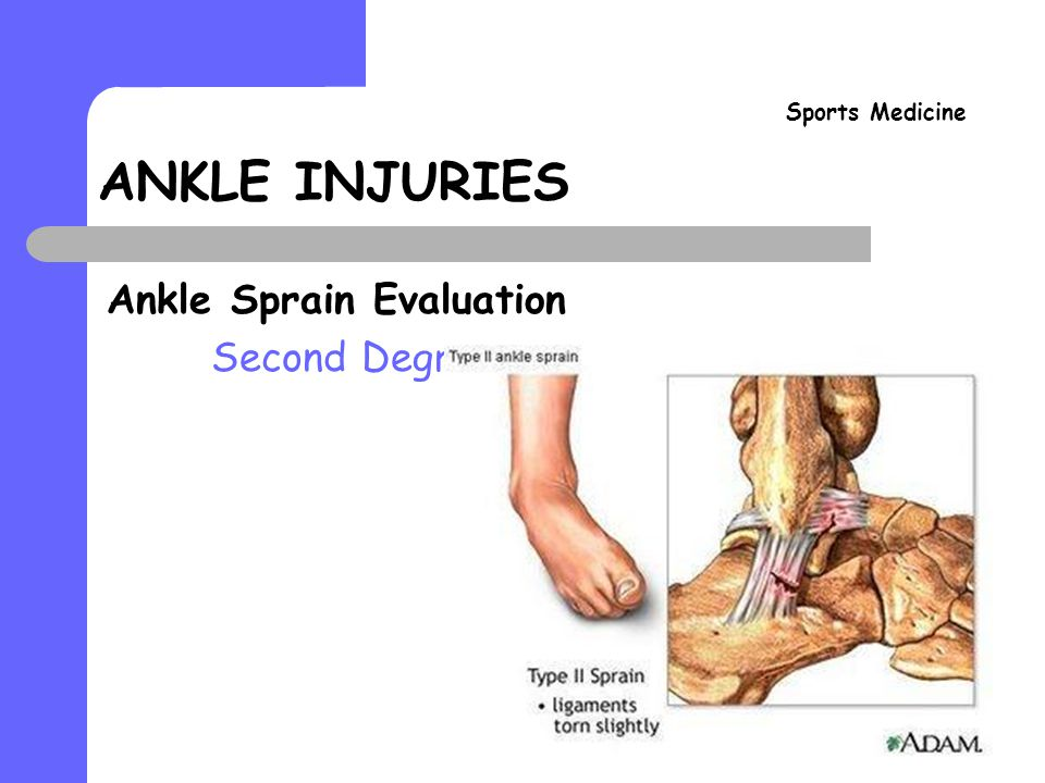 ankle injuries sports medicine ankle sprain evaluation. - ppt download, Human Body