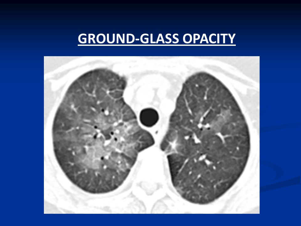 Patchy ground glass density of lungs
