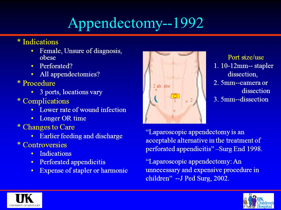 Appendectomy--1992 * Indications * Procedure * Complications