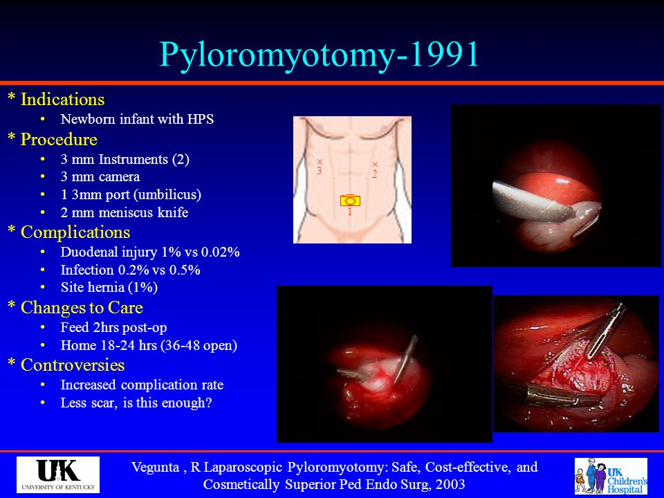 Pyloromyotomy-1991 * Indications * Procedure * Complications