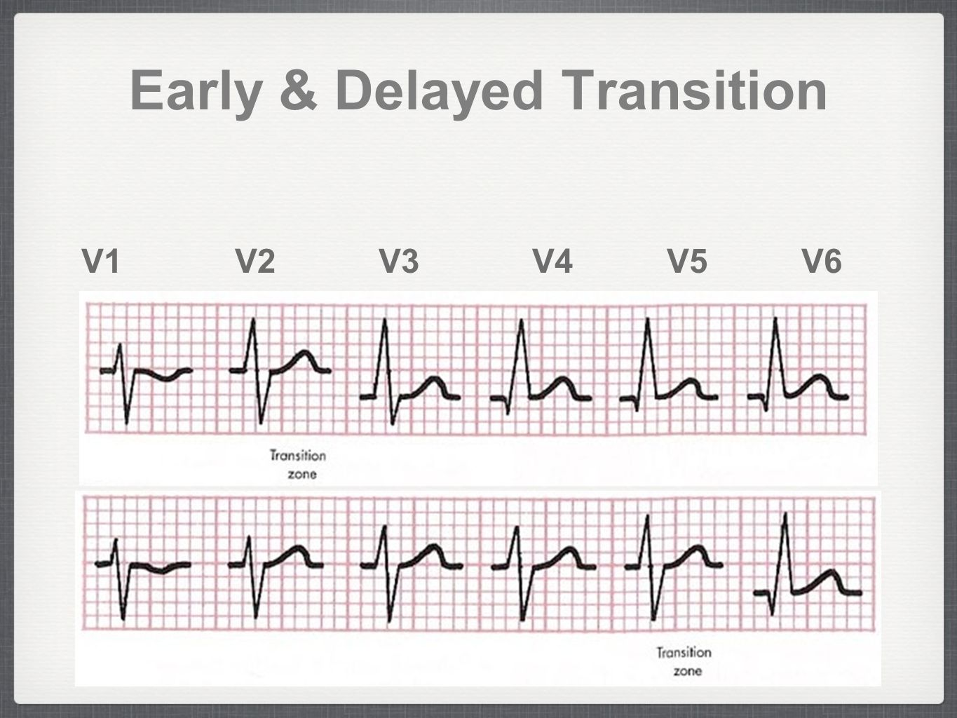 Rhythm By Transition Of Normal Ecg Rate And Rhythm Ppt Video Online Download