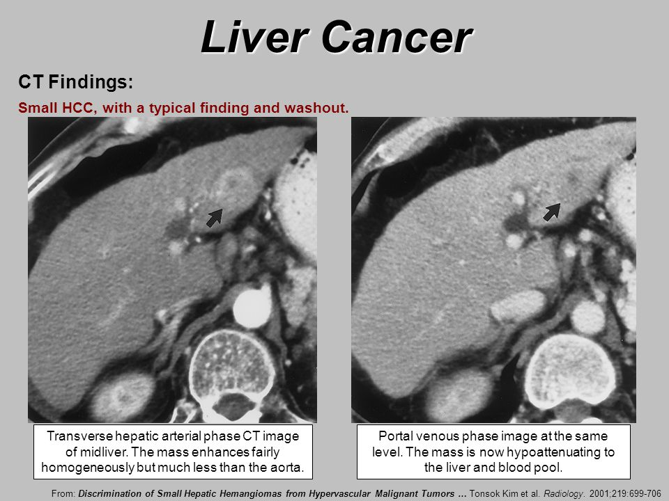 Liver Cancer Specialist In South Jersey