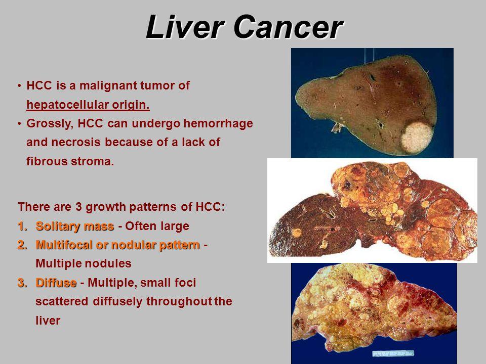 Liver Cancer - ppt video online download