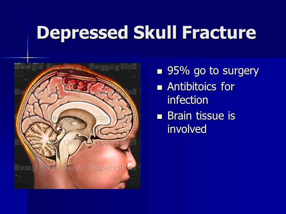 Traumatic Brain Injury A Case Study Ppt Video Online