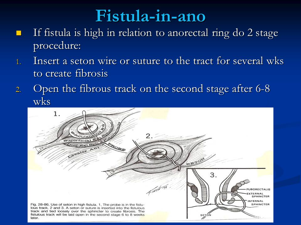 Fistula-in-ano If fistula is high in relation to anorectal ring do 2 stage procedure: