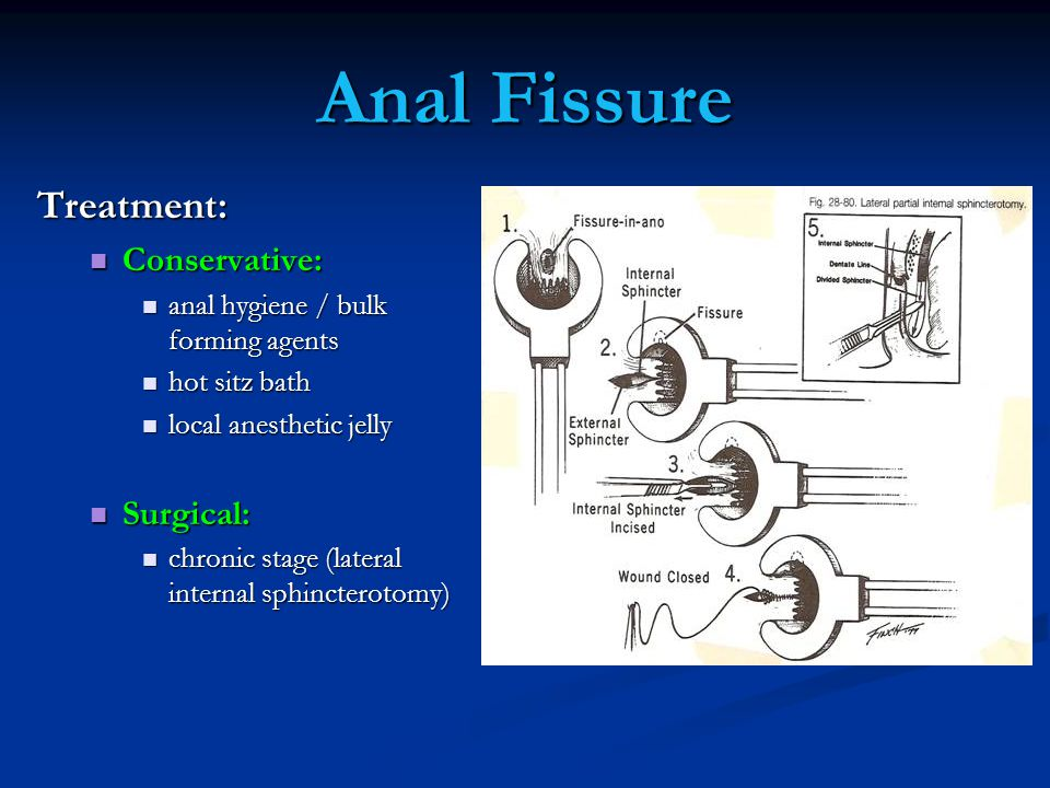 Anal Fissure Treatment: Conservative: Surgical: