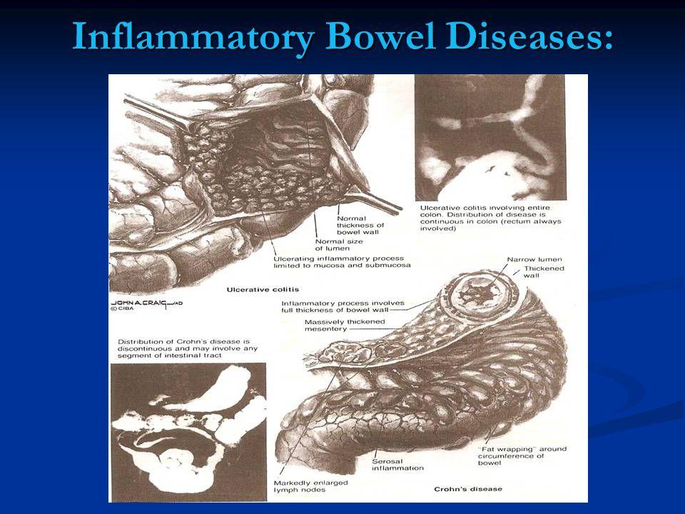 Inflammatory Bowel Diseases: